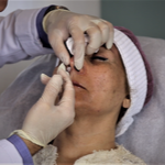 Non-surgical Rhinoplasty – Make it safe