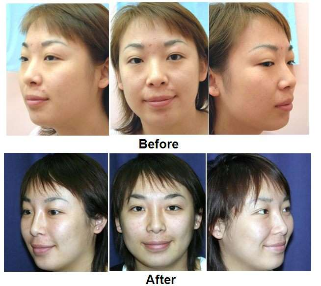 Rhinoplasty non-surgical course, nose job, CBAM, Injectables, Elite package, Elite plus package