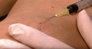 Sclerotherapy course, varicose veins, reticular veins, spider veins, CBAM, Injectables, Elite package, Elite plus package